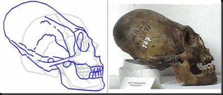 strong case against mainstream archaeology claims that the skulls    Elongated Skulls Africa