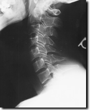 Normal cervical Radiograph