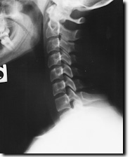 X-ray image of neck injured in an auto crash