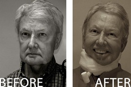 ebert before after