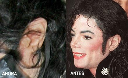 Oreja de Michael 2