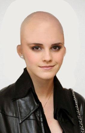 emma watson fake no hair head