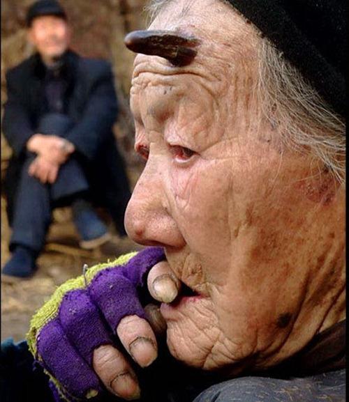 Chifre começa a nascer em mulher de cem anos