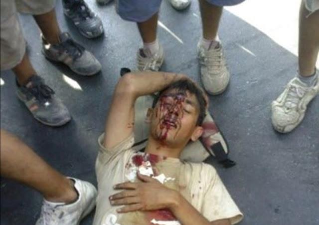 Patrasso, giovane afgano ferito dalla polizia portuale, Fotofraxia