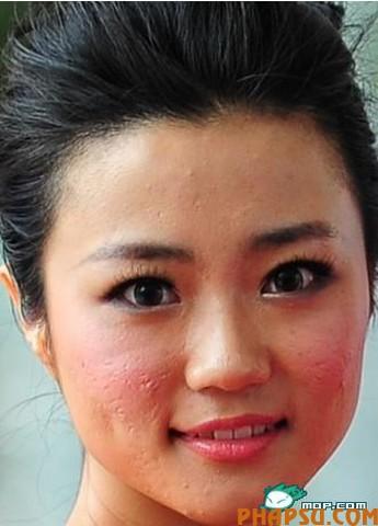 kong-yansong-bad-skin-01.jpg