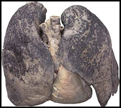BODIES_smokers_lungs