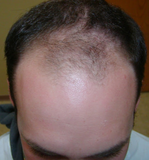 Pain And Sleep