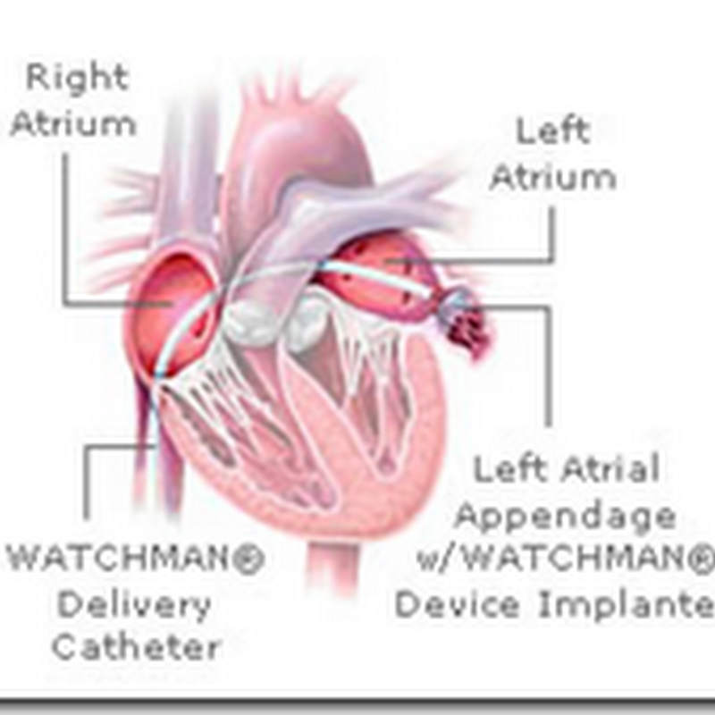 Atrial  Fibrillation – What will be the future standard of care, Warfarin or the Watchman Device?