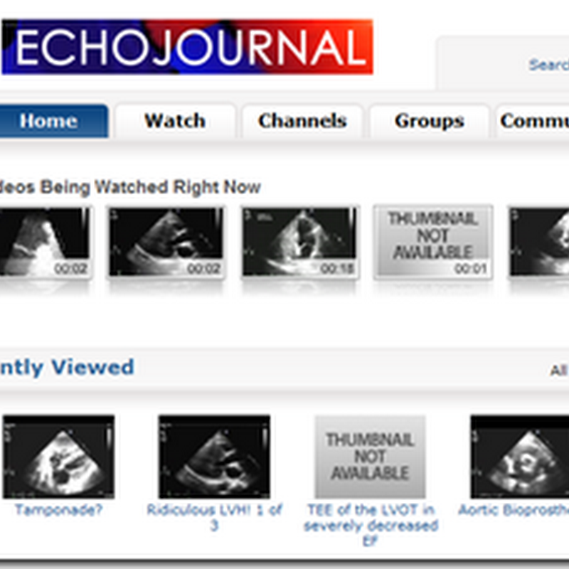 Video Sharing EchoJournal – Echocardiography Website Community