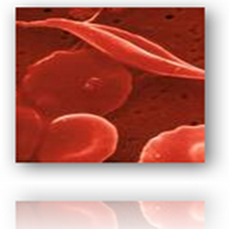 New Approach With Bone Marrow Transplants Cures Sickle Cell Disease