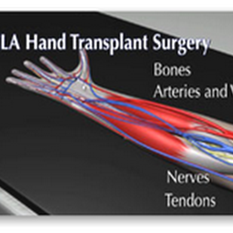 UCLA Hand Transplant Program Announced – Research Study Program And Afflicted Patients Can Apply