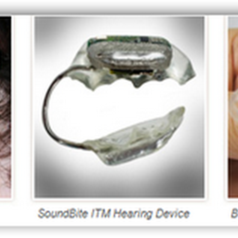 SoundBite™ Hearing System Gets European CE Mark–Wireless Hearing Aid That Attaches to Your Teeth