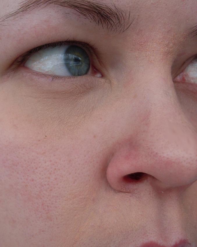 brustna blodkärl under ögonen