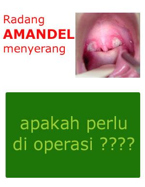 Solusi Amandel