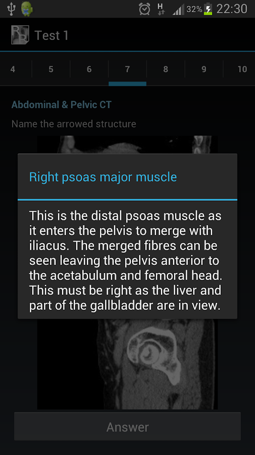 Radiological Anatomy For FRCR1 Screenshot 6