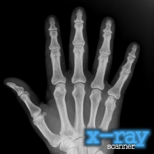 X-射線掃描儀 娛樂 App LOGO-APP試玩