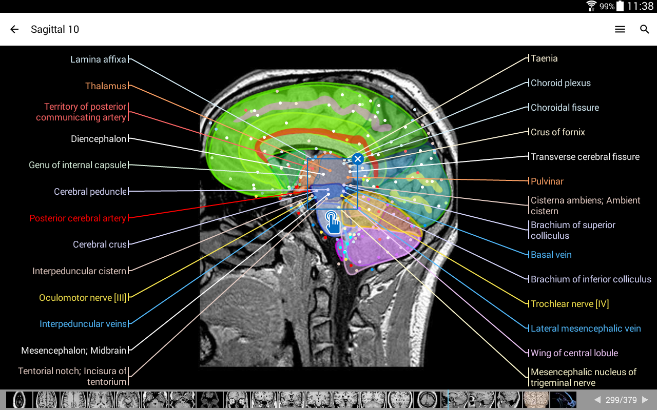 IMAIOS e-Anatomy Screenshot 10