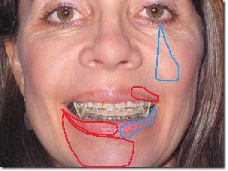 Facial Numbness 64