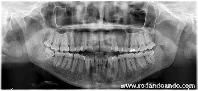 Una radiografía panorámica Digital para evaluar
