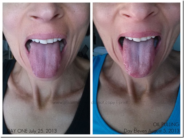 tongueB&A