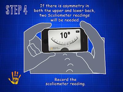 Scoliometer HD v1.0