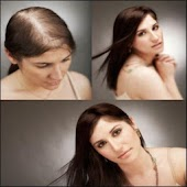 Hair loss problems in Women