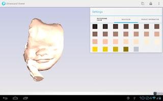 Screenshot of Ultrasound Viewer