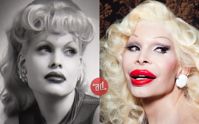 Foto del aumento de labios de Amanda Lepore
