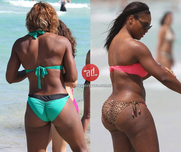 booty implants of Serena Williams