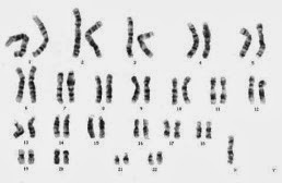 turner syndrome karyotype