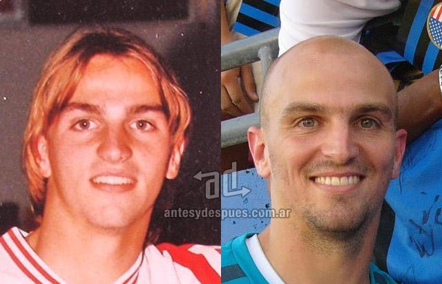 La caida del pelo de Esteban Cambiasso