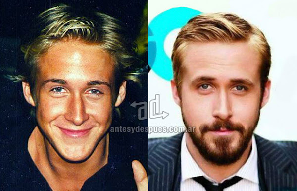Nose Job, Rhinoplasty, Ryan Gosling