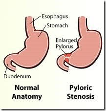 pyloric stenosis, gastric outlet obstruction, causes, treatment