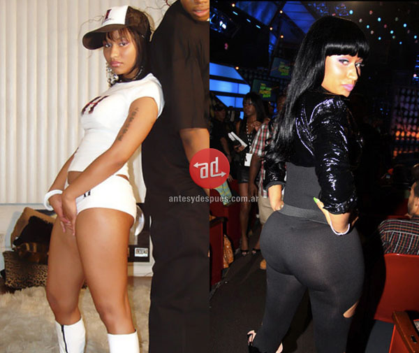 booty implants of Nicki Minaj