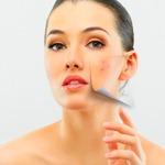 mel-para-acne