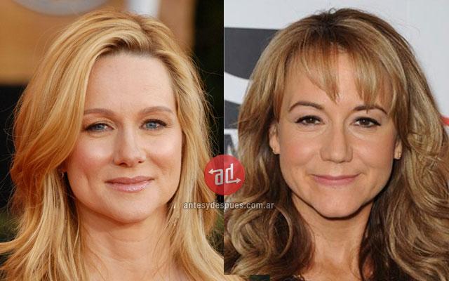 El parecido de Laura Linney y Megyn Price