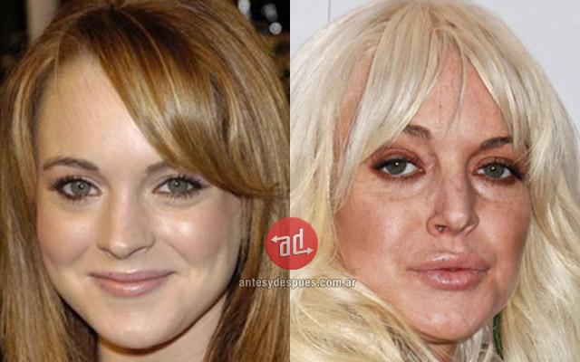 Famosos con botox, Lindsay Lohan