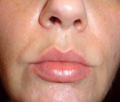 after SkinPhD_lips