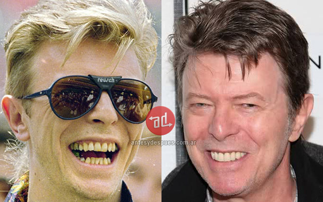 New teeth of David Bowie