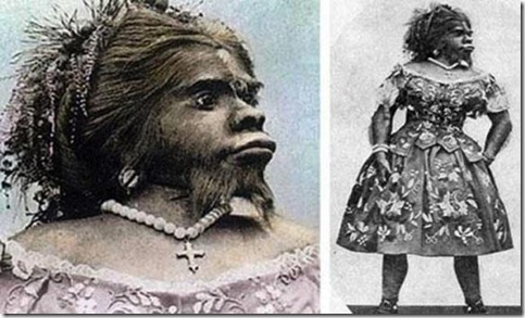 'Ape woman' buried after 150 years