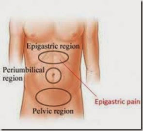 Pain below the sternum and above teh umbilicus