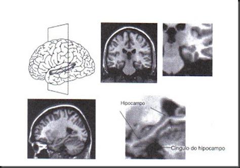 hipocampo livro