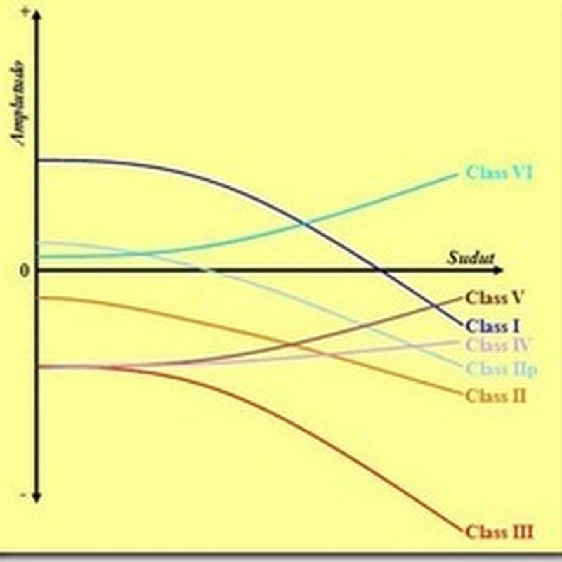 Metode Amplitude Versus Off-Set (AVO)