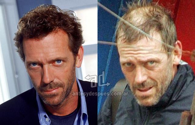 La caida del pelo de Hugh Laurie