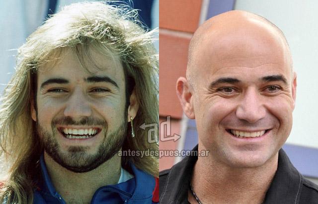 La caida del pelo de Andre Agassi