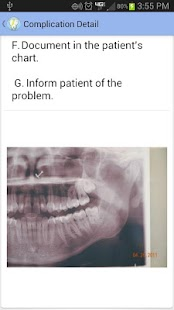 Oral Surgery Complications - screenshot thumbnail