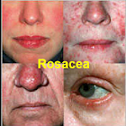 Rosacea Free Forever! icon