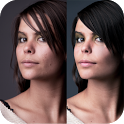 Pimple Remover Photo Retouch icon