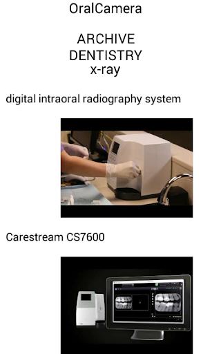OralCamera