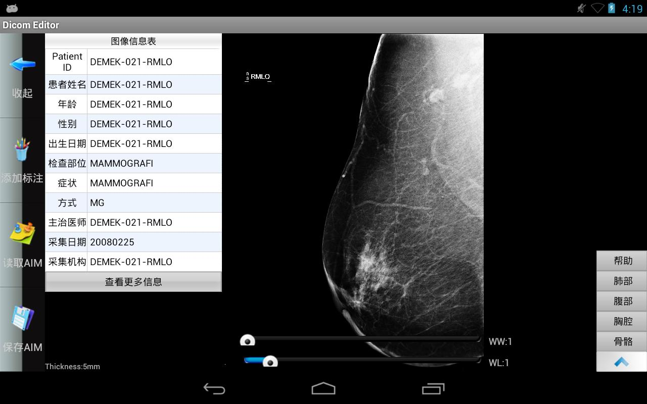 Dicom Editor - screenshot